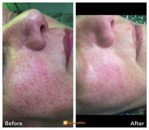 Voor en na foto couperose behandeling