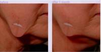 huidversteviging wang/hals
