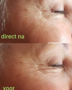 Resultaat microneedling voor en direct na